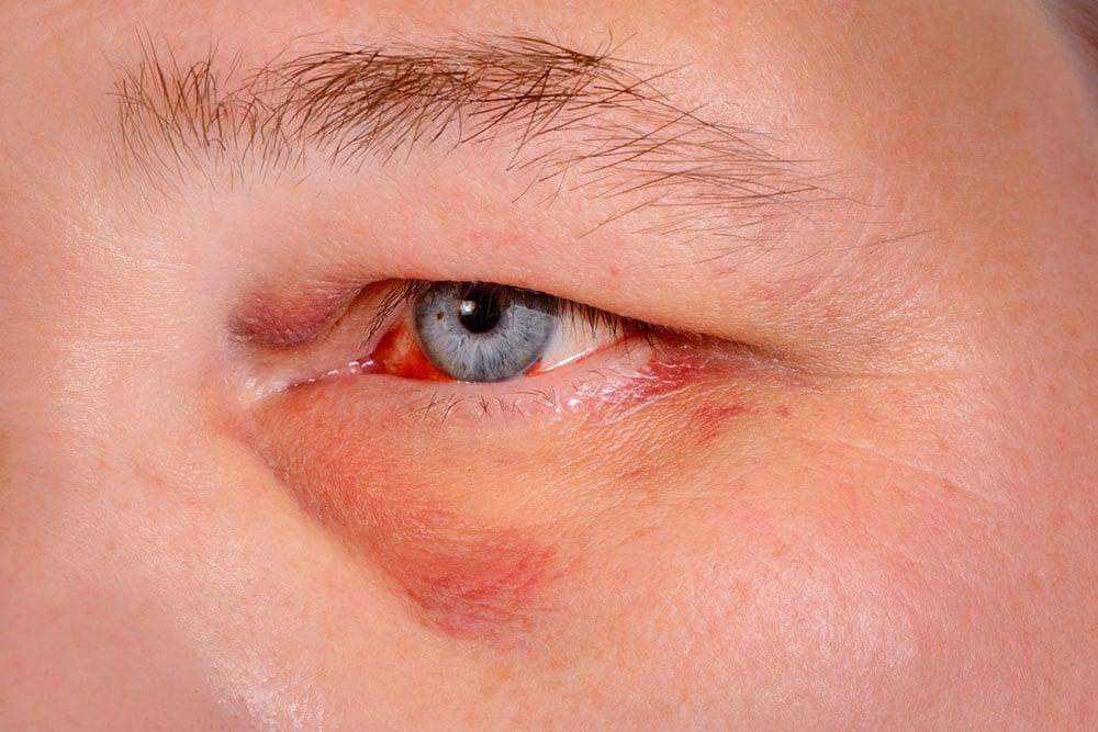 Você sabe o que é lesão ocular?