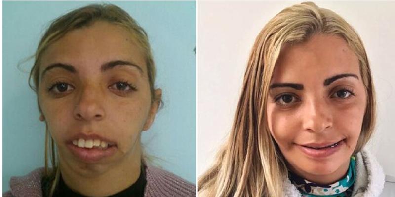 Mulher chamada de 'monstro' por ter rosto deformado faz cirurgia e muda radicalmente