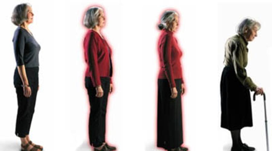 A Osteopenia (início da Osteoporose) – Osteoporose – Sarcopenia e Osteossarcopenia