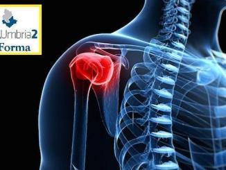 Patologie della spalla, primo intervento Bone-Block in Umbria, a Foligno