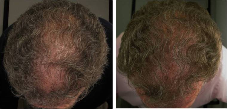 Follicle Thought – Hair Growth Treatment News