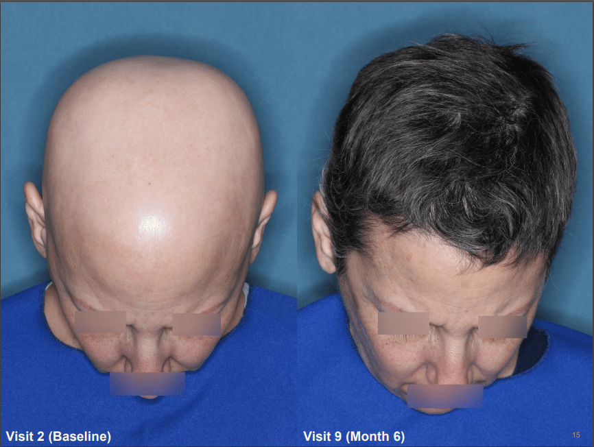 Follicle Thought | Hair Growth Treatment News