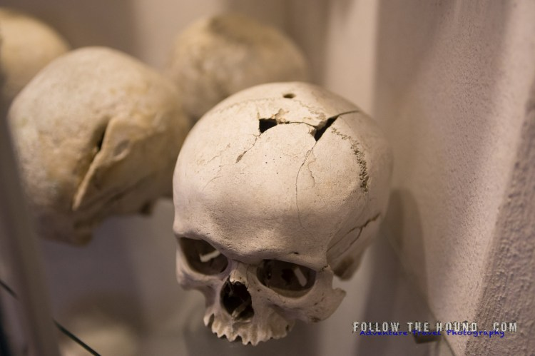 Church Bones -26