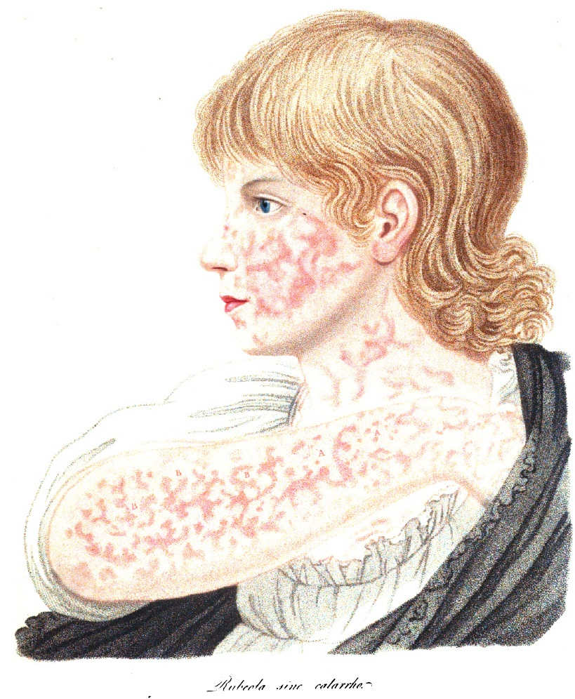 Da Robert Willan e Thomas Bateman, Delineations of cutaneous diseases, op. cit.