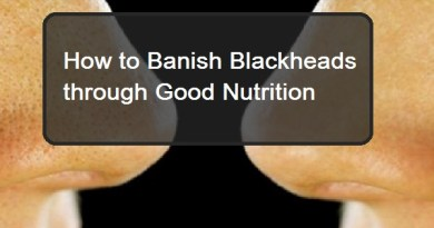 Banish Blackheads