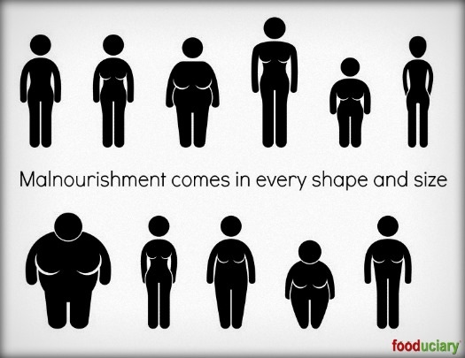 malnourishment knows no shapes or sizes