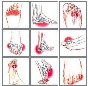 Foot Pain Symptoms & How To Treat Them - Foot Pain Explored
