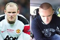 Rooney-trapianto-di-capelli