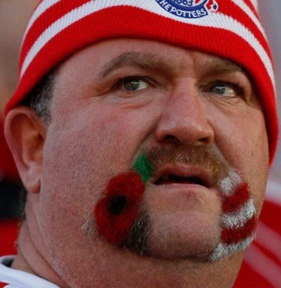 Hairy-potter-mustache-beard-stoke-city-fan