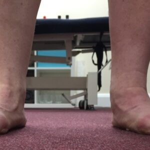 Painful flat feet