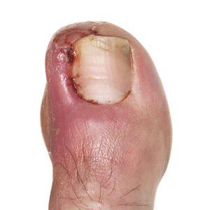 Ingrowing toenail nails surgery