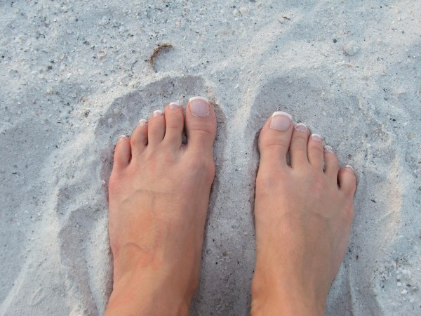 Metatarsalgia: Yes, I Had Pain Under My Toes!   Foothills ...
