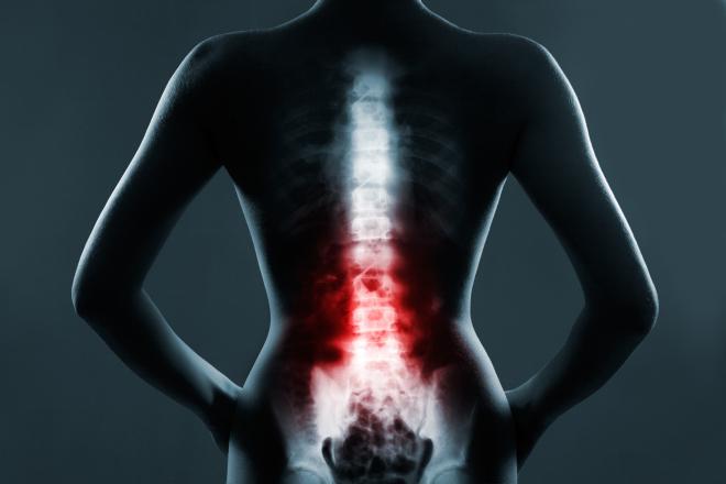 healthy spine posture