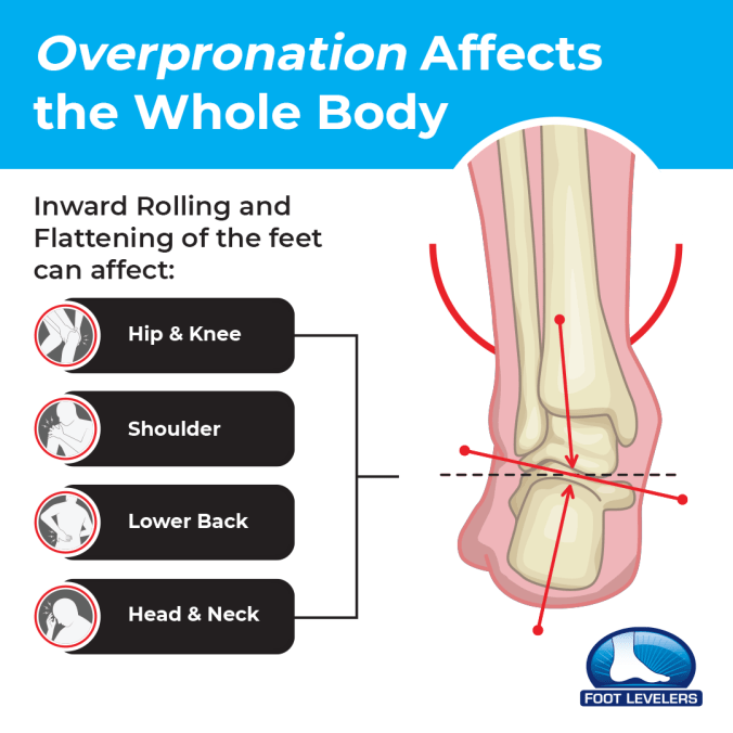 Overpronation and flat feet affects the whole body