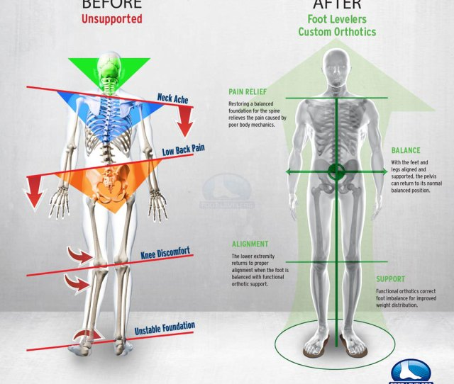 Low Back Pain Correction Infographic
