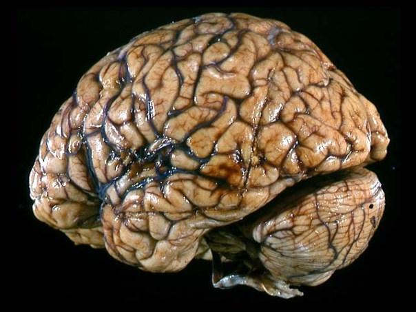 brain71