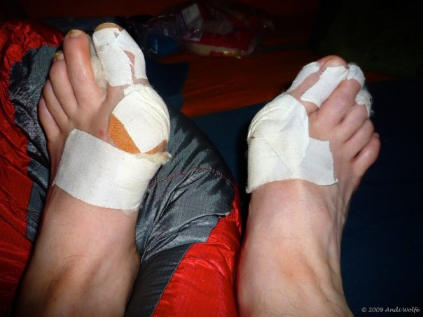 close-up-of-womans-heavily-bandaged-feet-during-hike-bandages-cushions-band-aids-covering-bunions-blisters-and-corns