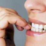 Morderse las uñas y la piel podría ocasionar una infección letal: conoce los riesgos de este hábito