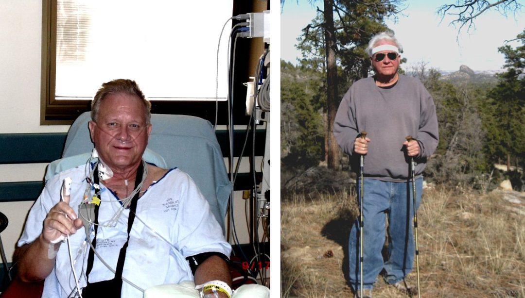 "Rick McKeon之前基於植物的飲食肥胖症"" width ="" 1174"" height ="" 668"