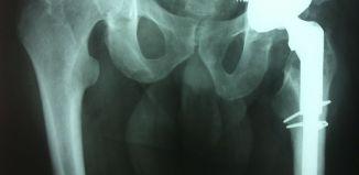 Evite una cirugia de columna - Formula Medica