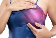 Cancer de mama metastasico - Formula Medica