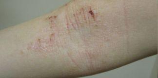 Dermatitis Atopica - Formula Medica