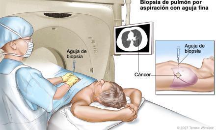 Tuxpan, sede de curso sobre diagnóstico y tratamiento de tumores músculo-esqueléticos
