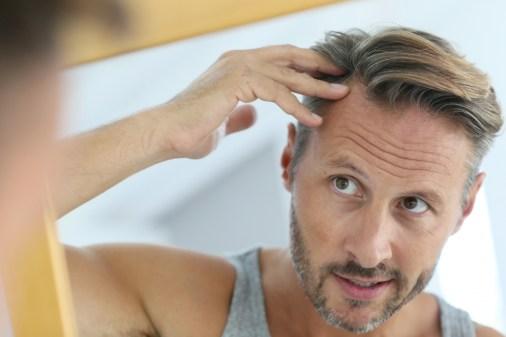 Kale plekken te lijf met scalppigmentatie