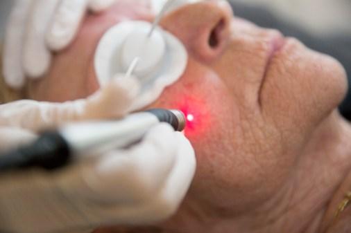Een huidtherapeut helpt je huid vooruit