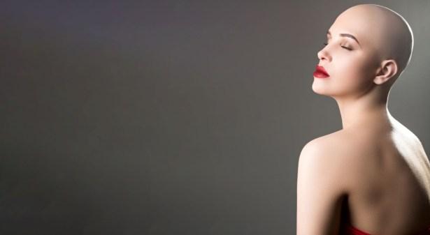 PMU: ook uitkomst bij alopecia