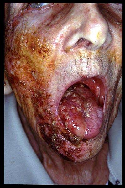Herpes ball sack