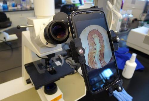 Fotomicrografía con el móvil