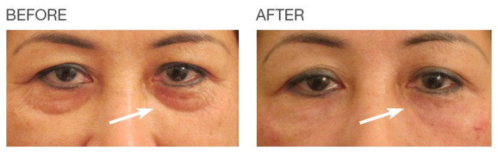 Before-After-under-eyes-EyeRise-Cosmetic-Treatment