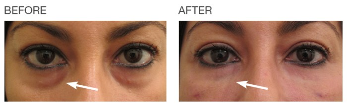 Dark-Circles-Under-Eyes-Before-After-EyeRise