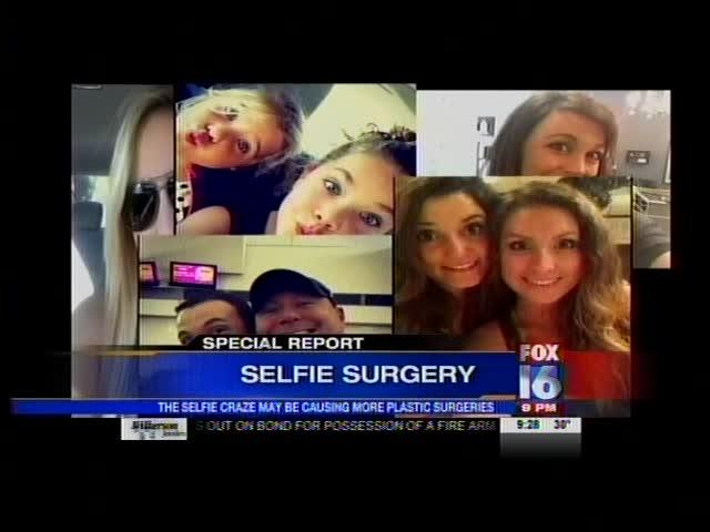 Selfie Surgery_-347509648364253834