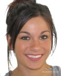 Six-Month-Smiles-Invisalign-alternative-Framingham