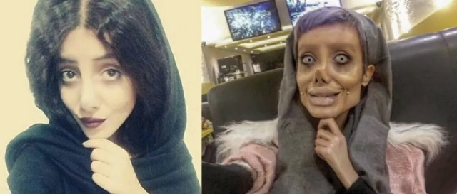 Image: Sahar Tabar before and after surgery