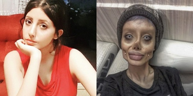 Image: Sahar Tabar before and after surgery