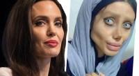 Teen gets 50 plastic surgeries to look like Angelina Jolie