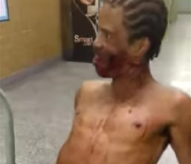 Possessed man at hospital
