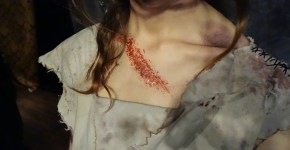 I Was Scratched By The Dead