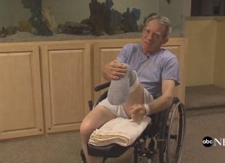 Nebraska Farmer Saws Off Own Leg To Save His Own Life
