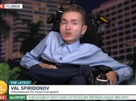 Disabled Russian Man Decides Against World's-First Head Transplant