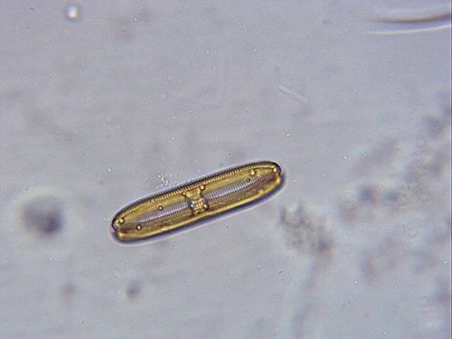 15-08-microscope-diatom