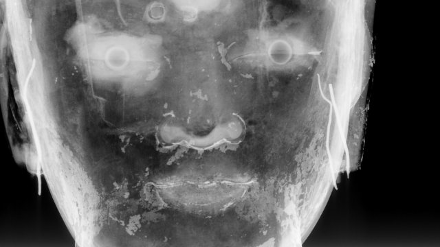 xray image of a statue