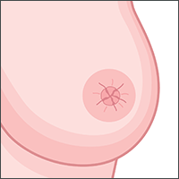 appearance or nipple direction