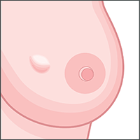 signs and symptoms breast cancer lump