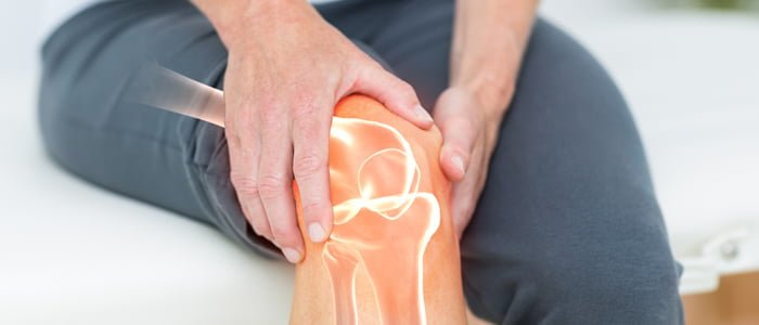 Image result for arthritis in knee free image