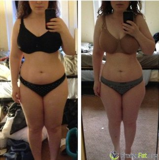 freezefat.org - before and after cryolipolysis treatment