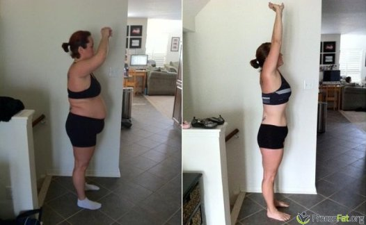 freezefat.org - before and after fat freezing treatment at home